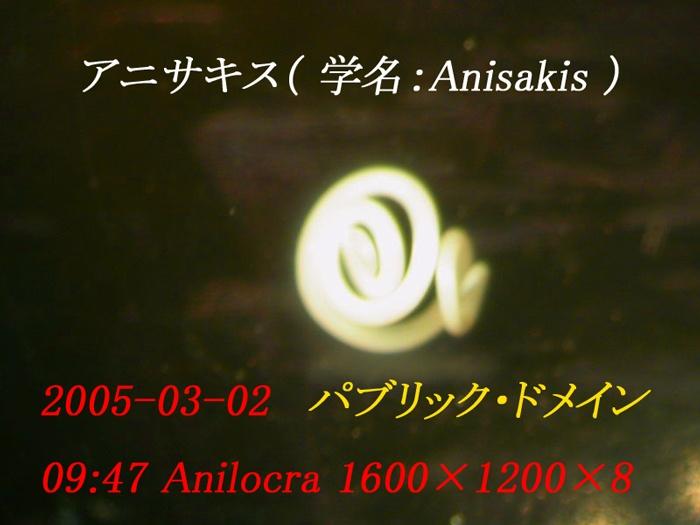 anisakis